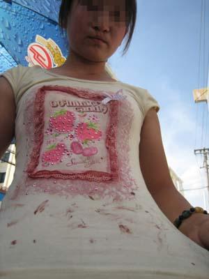 冲突中她妹妹的胳膊受伤流血.图片