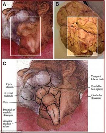 壁画 大脑/米开朗基罗壁画:上帝颈部是大脑解剖图?