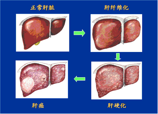 肝脏虚弱有哪些症状?怎么治疗