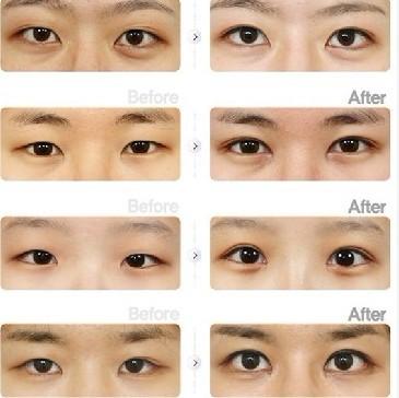 韩式切开法:非凡韩式双眼皮
