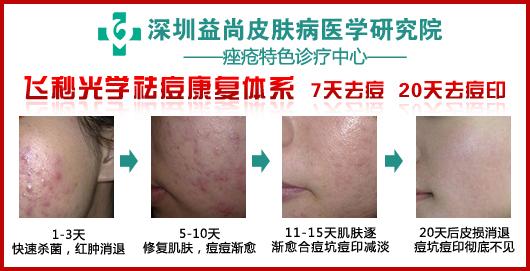 深圳益尚皮肤病