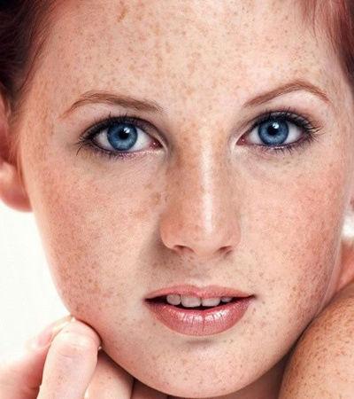 斑点皮肤结构图
